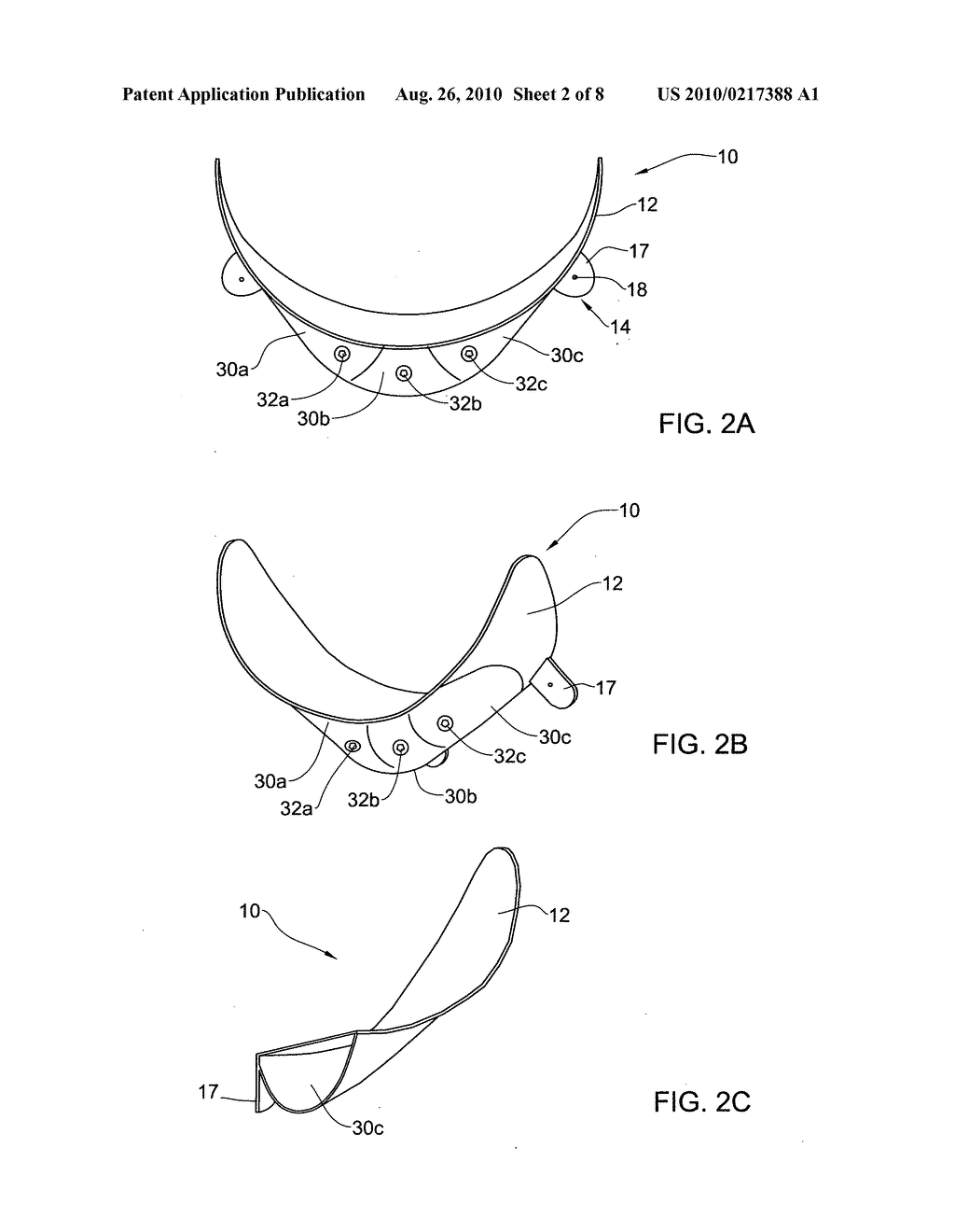 SYSTEM AND METHOD FOR RESHAPING SOFT TISSUE - diagram, schematic, and image 03
