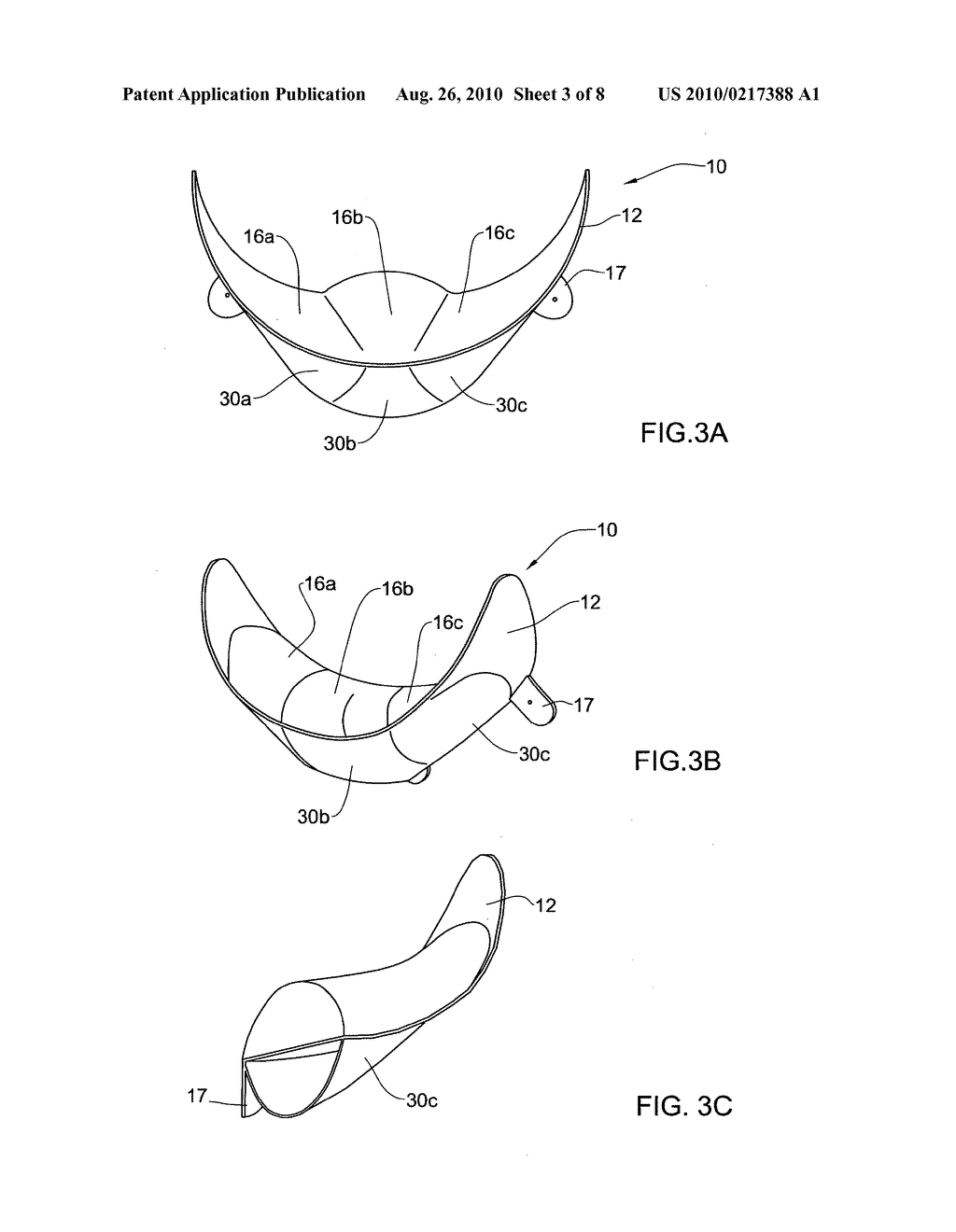 SYSTEM AND METHOD FOR RESHAPING SOFT TISSUE - diagram, schematic, and image 04