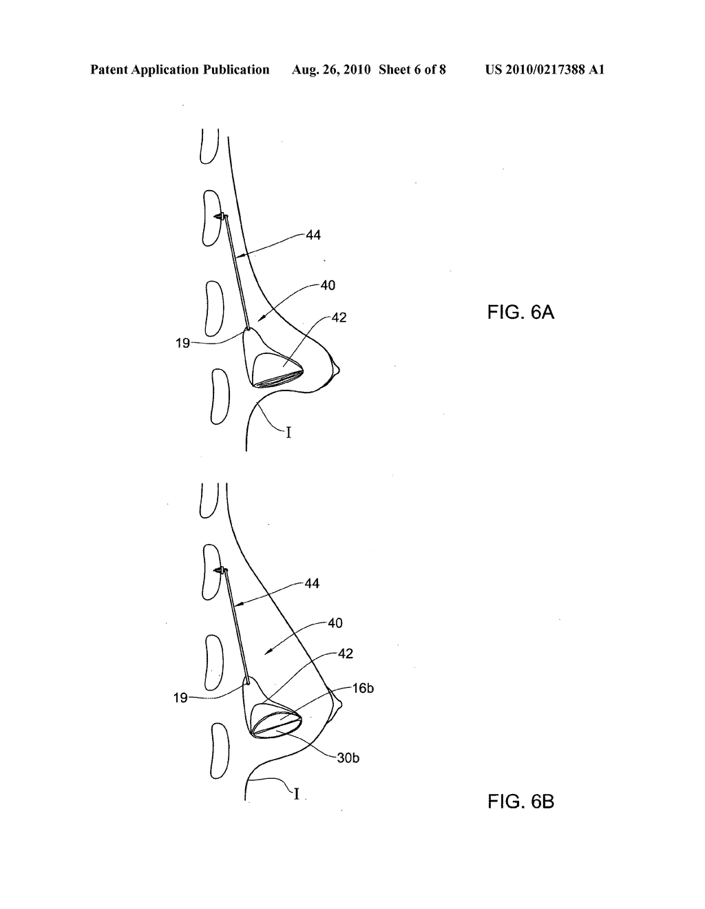 SYSTEM AND METHOD FOR RESHAPING SOFT TISSUE - diagram, schematic, and image 07