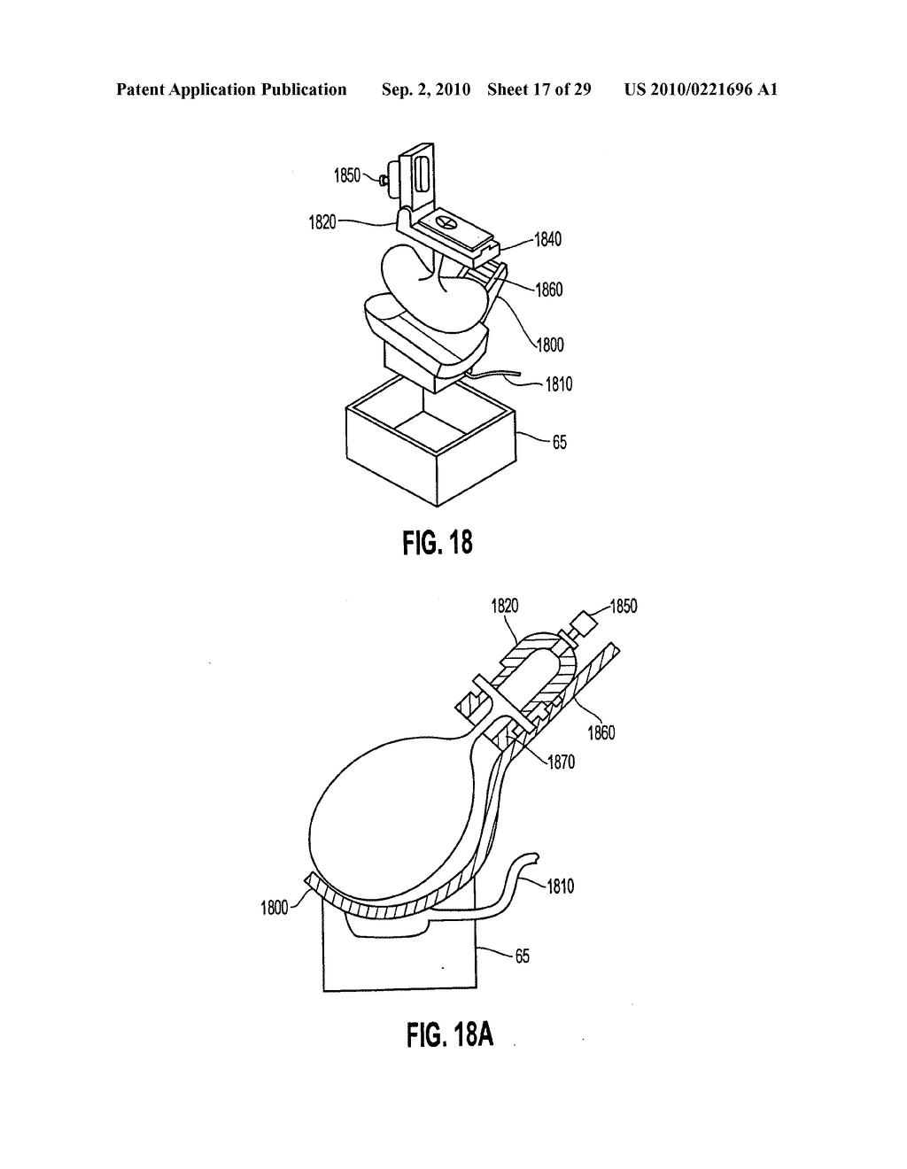 Apparatus and method for maintaining and/or restoring viability of organs - diagram, schematic, and image 18