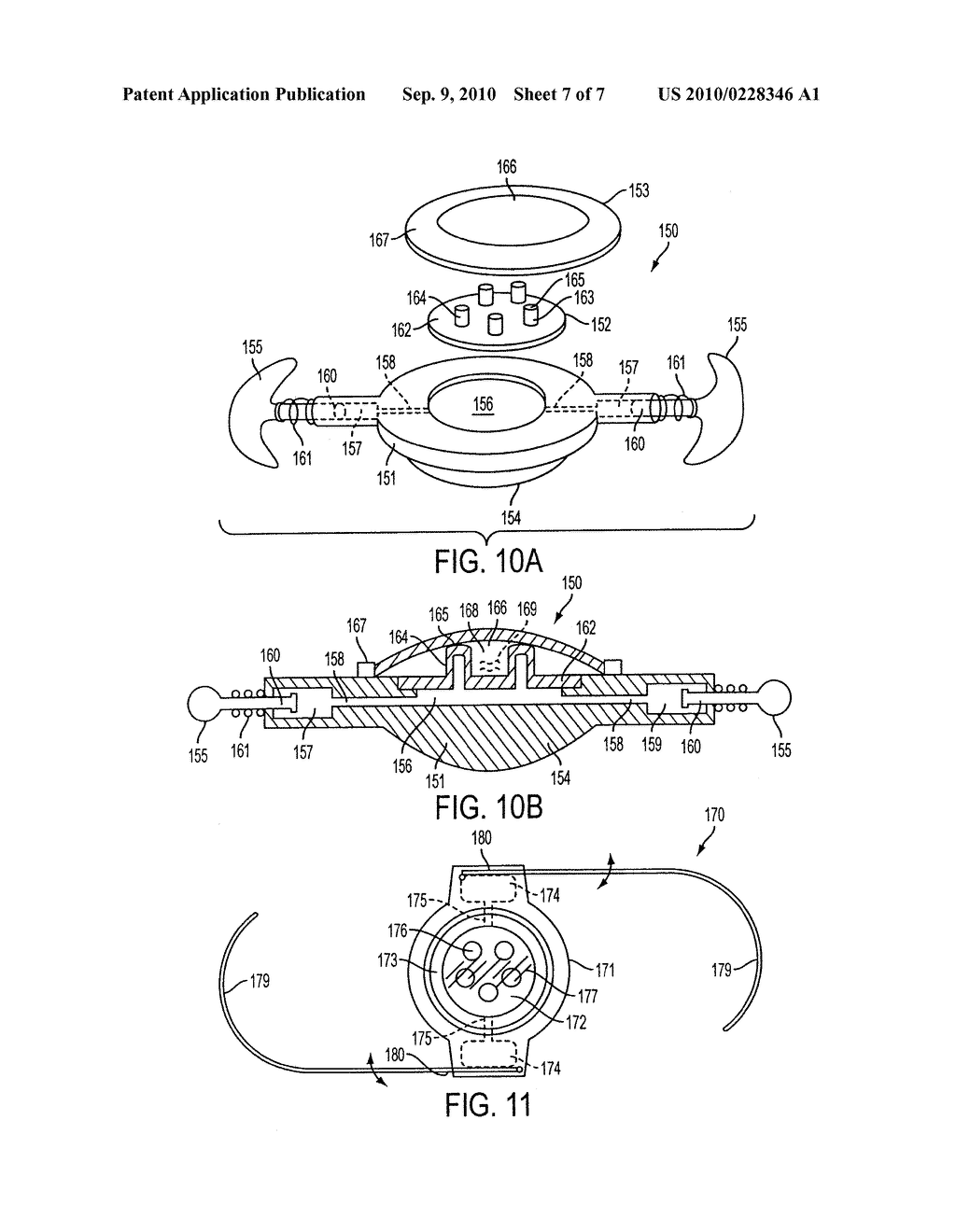 Accommodating Intraocular Lens - diagram, schematic, and image 08