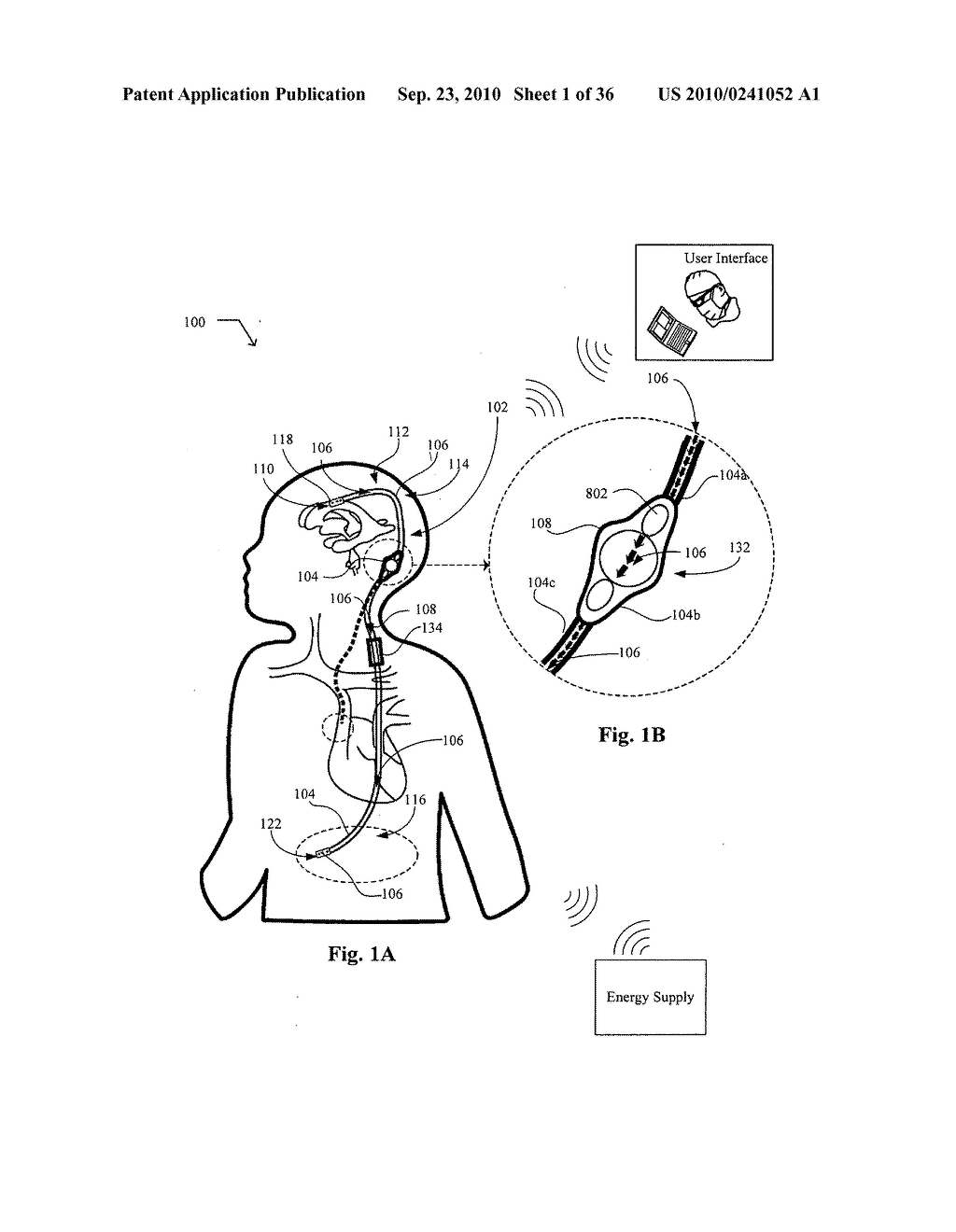 Systems, devices, and methods including infection-fighting and monitoring shunts - diagram, schematic, and image 02