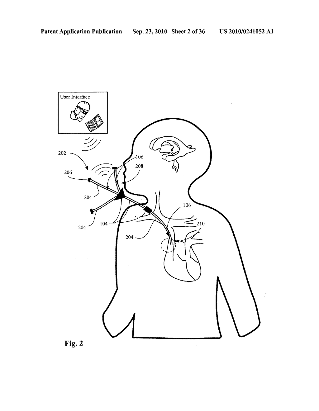 Systems, devices, and methods including infection-fighting and monitoring shunts - diagram, schematic, and image 03