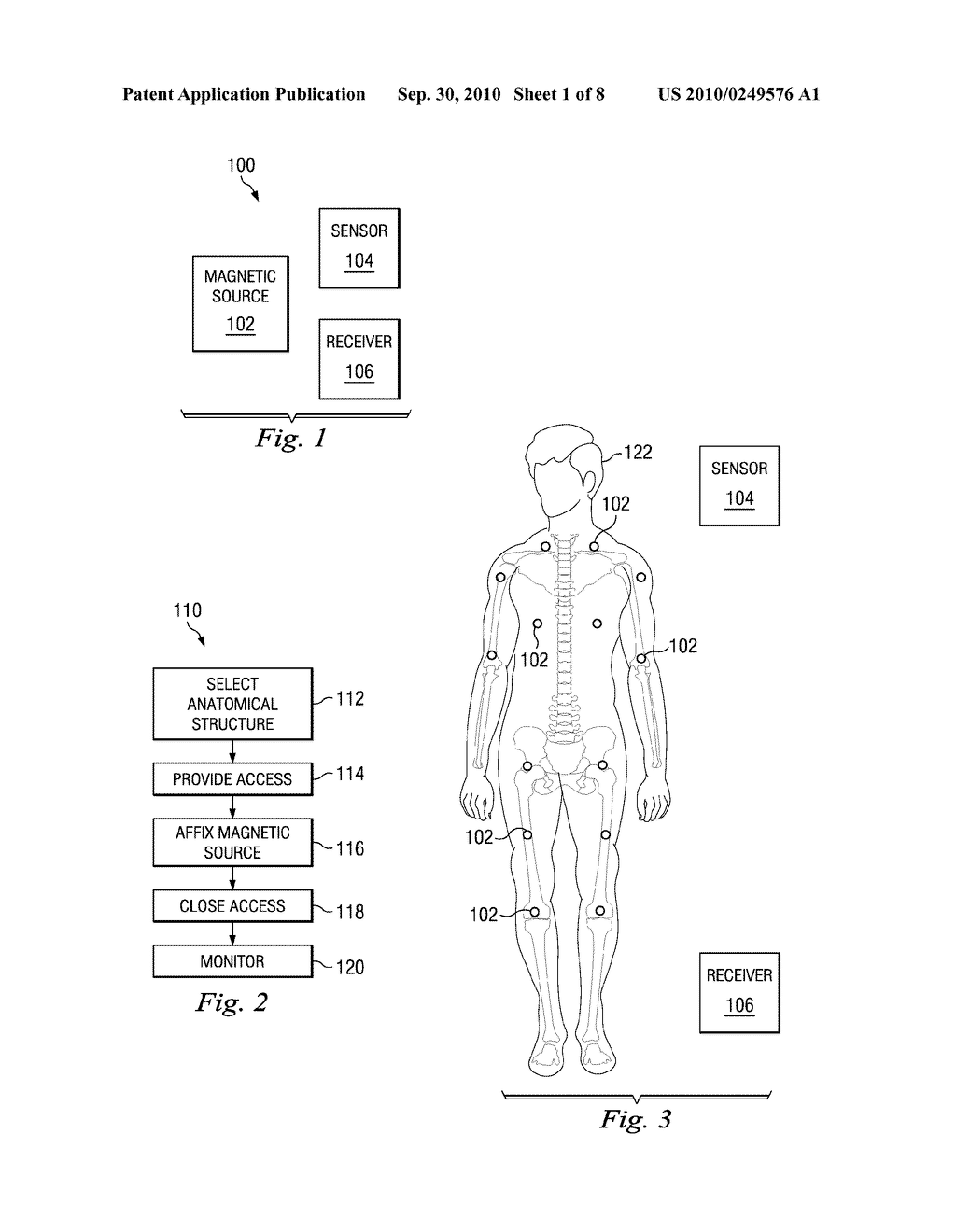 DEVICES, SYSTEMS, AND METHODS OF TRACKING ANATOMICAL FEATURES - diagram, schematic, and image 02