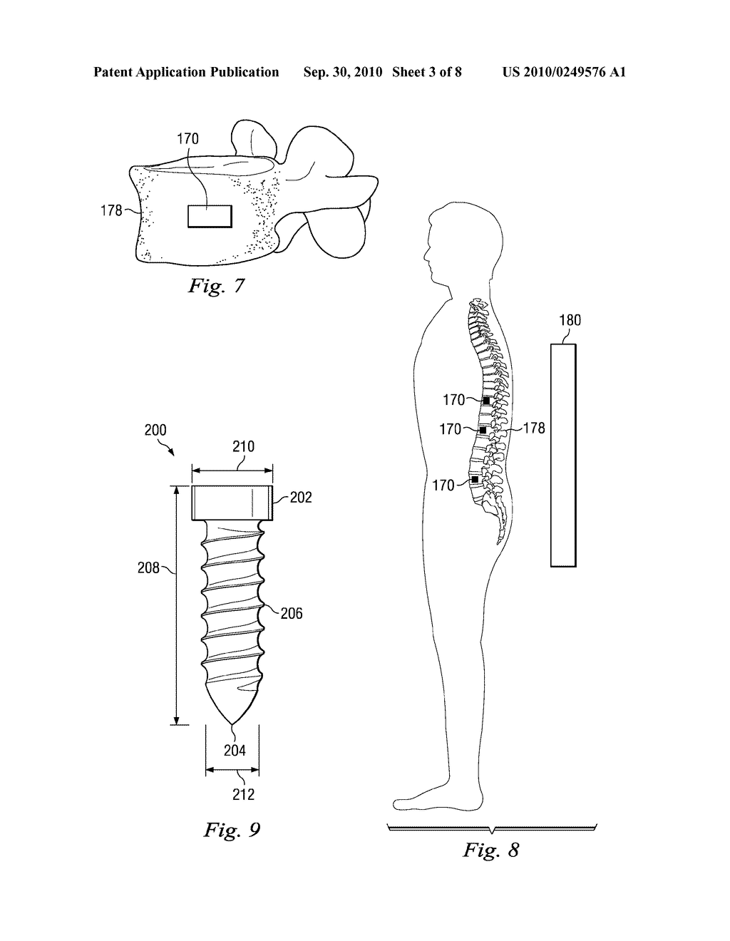 DEVICES, SYSTEMS, AND METHODS OF TRACKING ANATOMICAL FEATURES - diagram, schematic, and image 04