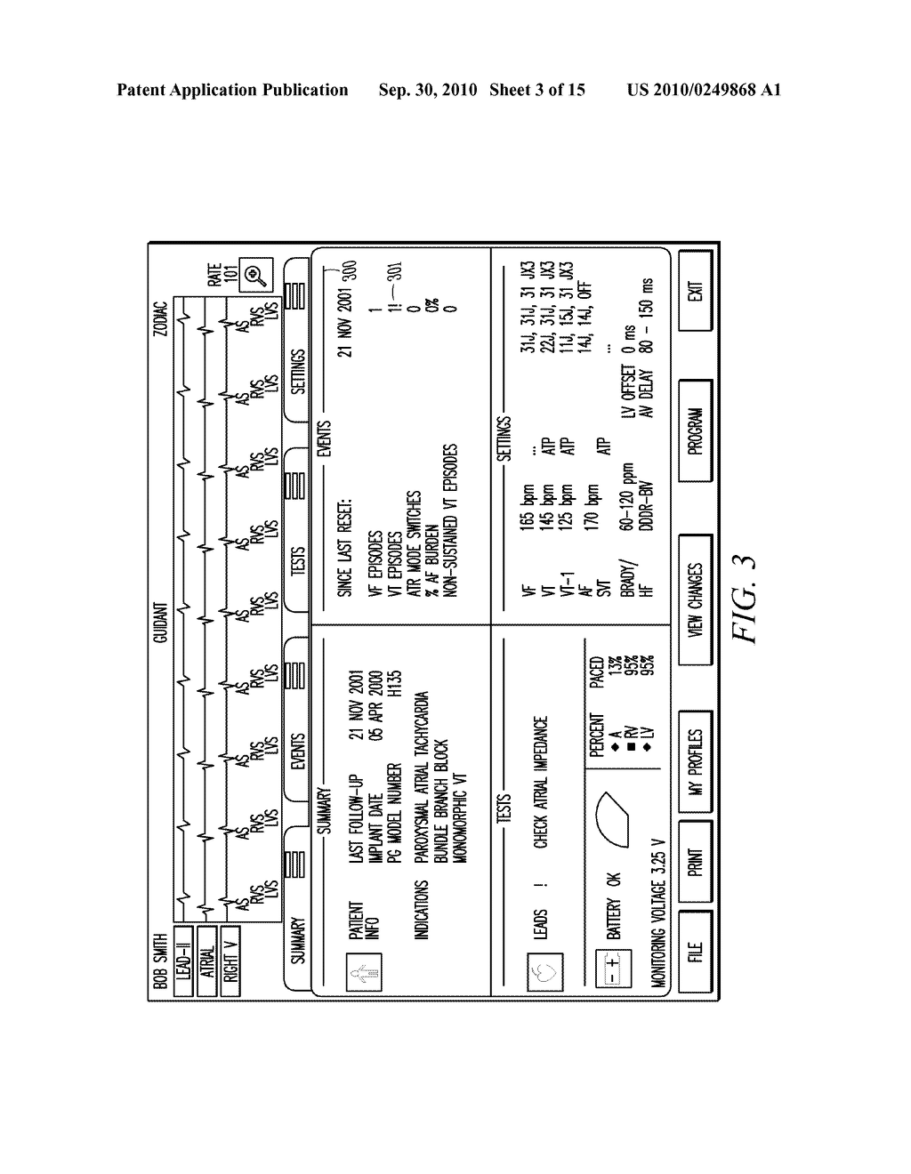IMPLANTABLE MEDICAL DEVICE PROGRAMMING APPARATUS HAVING A GRAPHICAL USER INTERFACE - diagram, schematic, and image 04