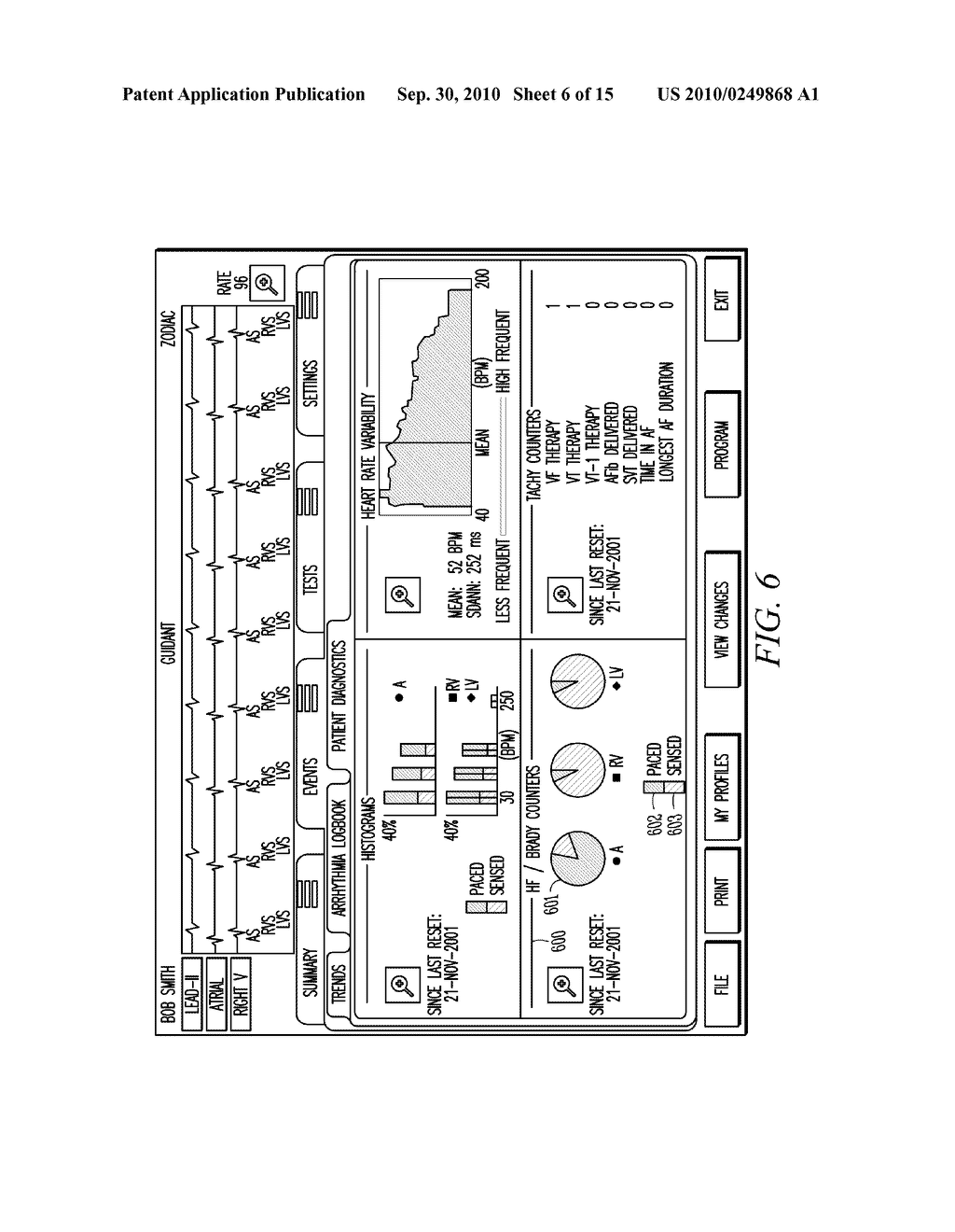 IMPLANTABLE MEDICAL DEVICE PROGRAMMING APPARATUS HAVING A GRAPHICAL USER INTERFACE - diagram, schematic, and image 07