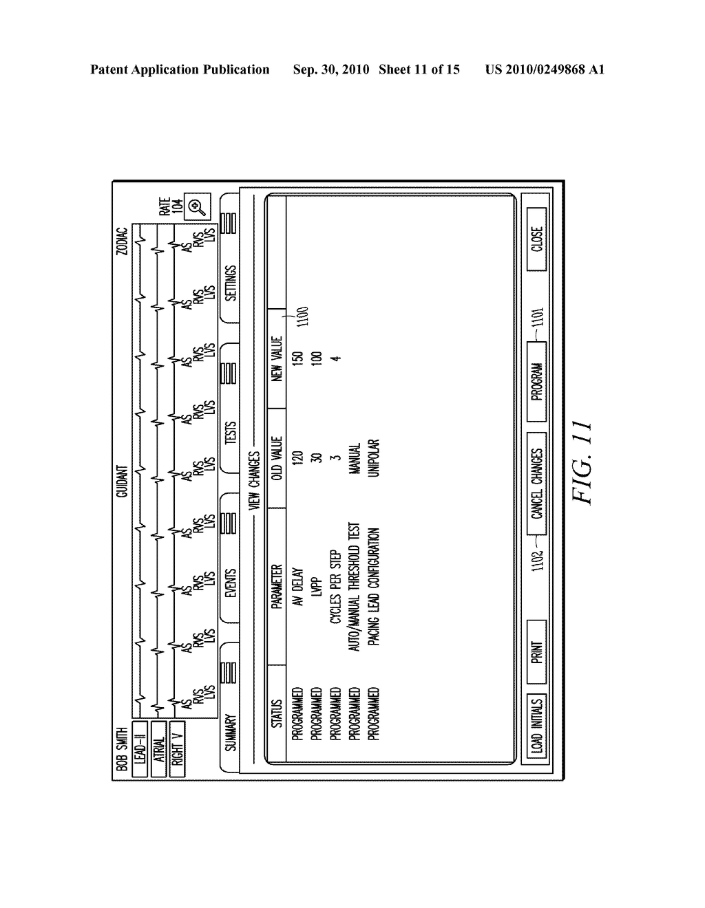 IMPLANTABLE MEDICAL DEVICE PROGRAMMING APPARATUS HAVING A GRAPHICAL USER INTERFACE - diagram, schematic, and image 12