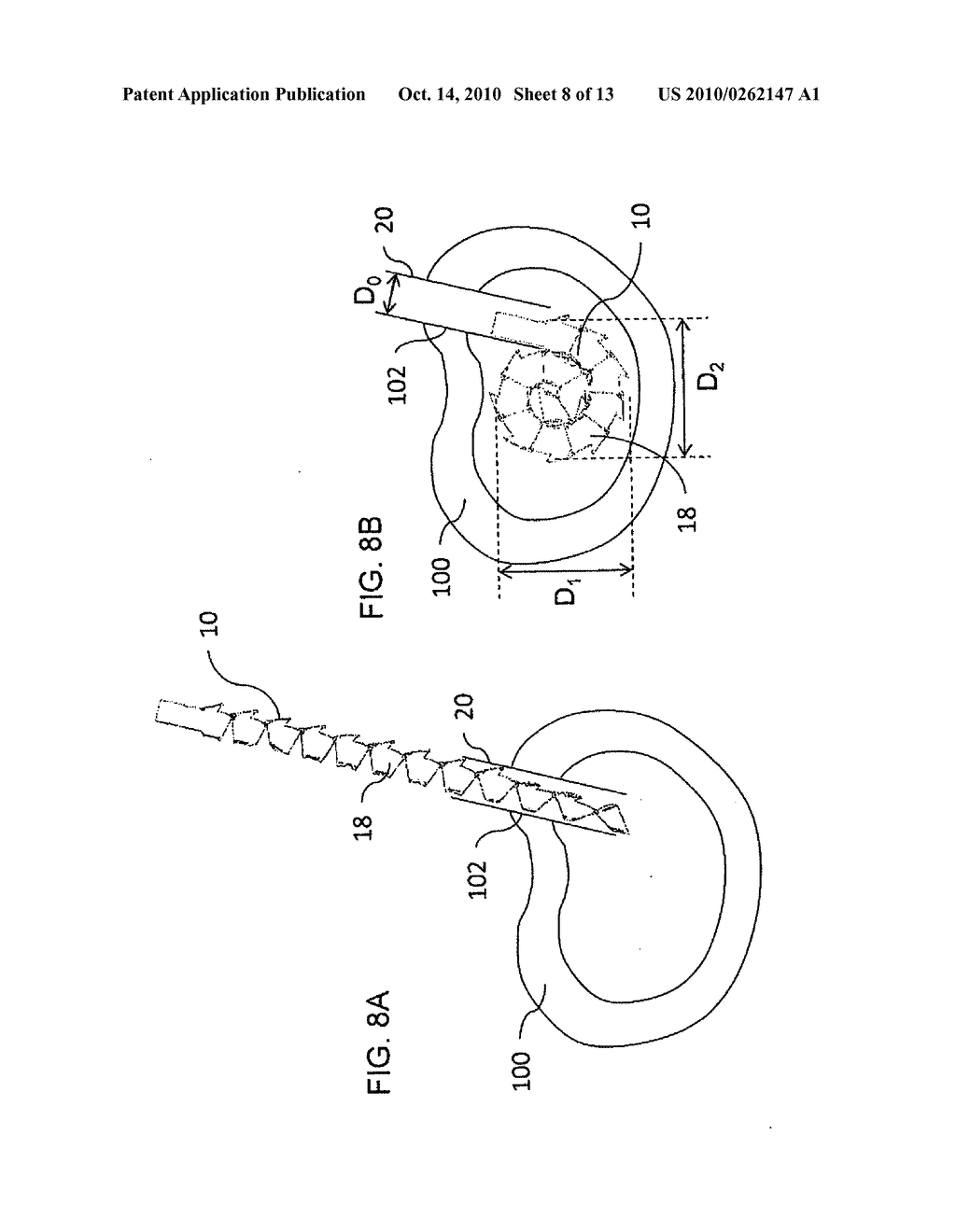 TOOL AND CORRESPONDING METHOD FOR REMOVAL OF MATERIAL FROM WITHIN A BODY - diagram, schematic, and image 09