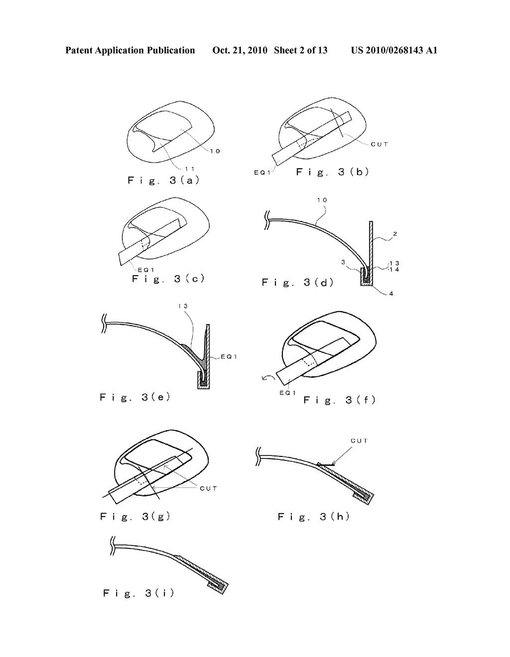 Pincer Nail Deformity Pincer Nail Correction Tool