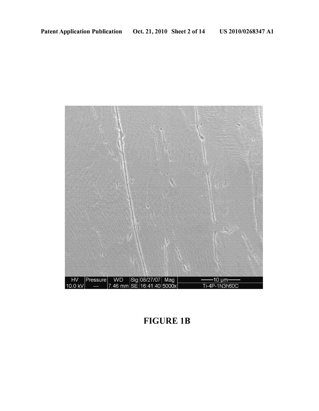MICRO AND NANO SCALE SURFACE TEXTURED TITANIUM-CONTAINING ARTICLES AND METHODS OF PRODUCING SAME - diagram, schematic, and image 03