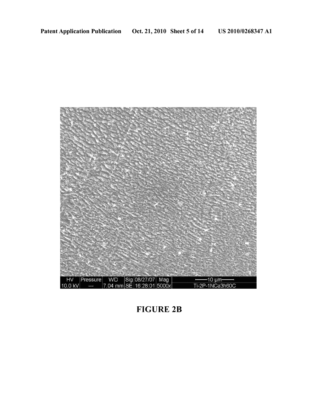 MICRO AND NANO SCALE SURFACE TEXTURED TITANIUM-CONTAINING ARTICLES AND METHODS OF PRODUCING SAME - diagram, schematic, and image 06
