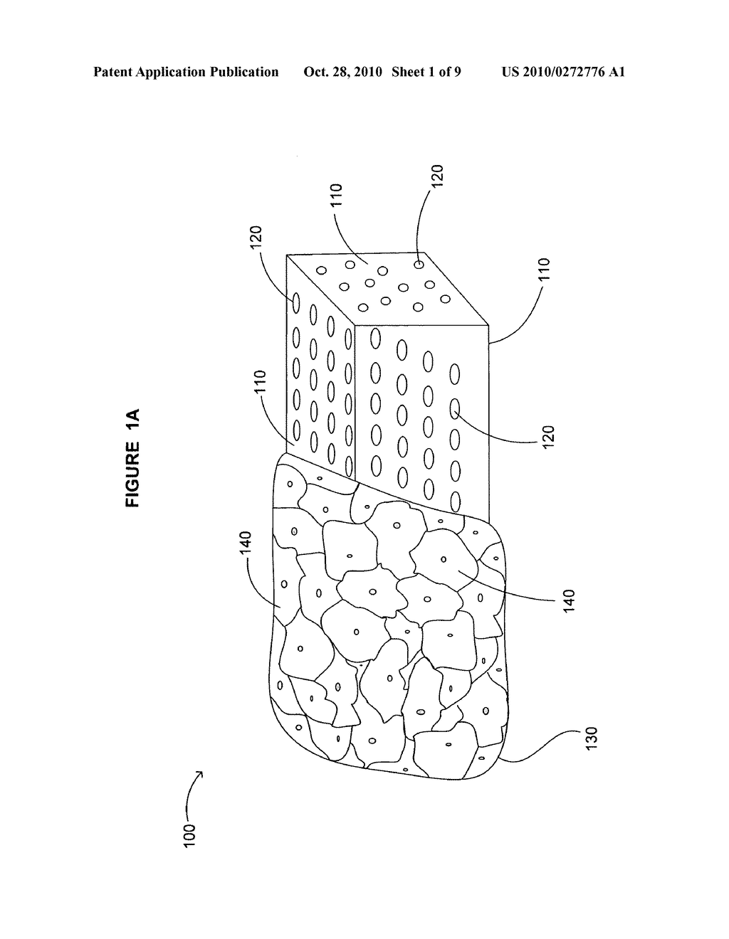 Device including bone cage and method for treatment of disease in a subject - diagram, schematic, and image 02