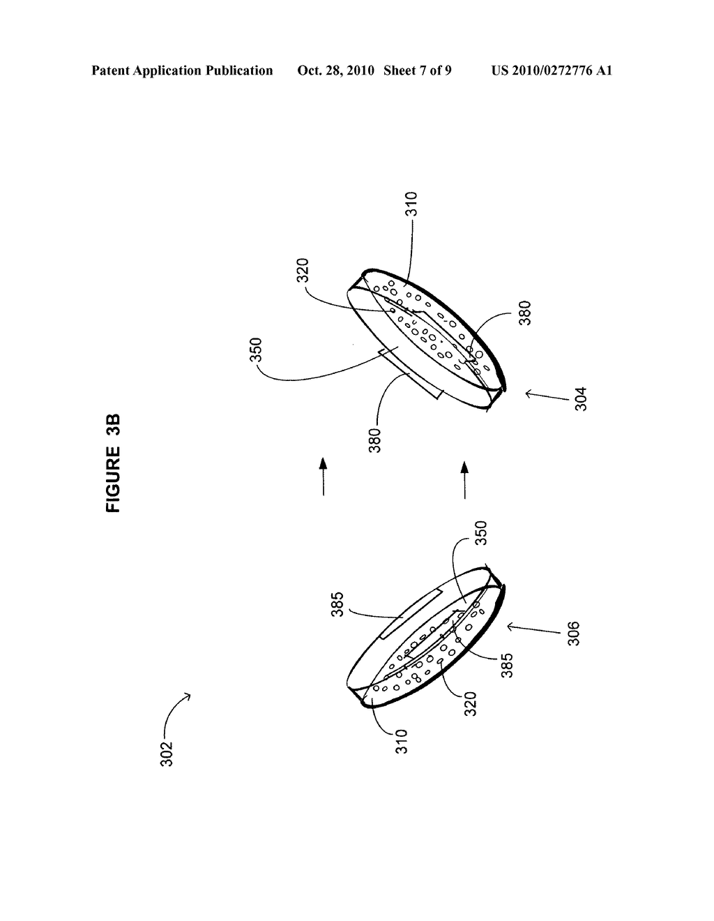 Device including bone cage and method for treatment of disease in a subject - diagram, schematic, and image 08