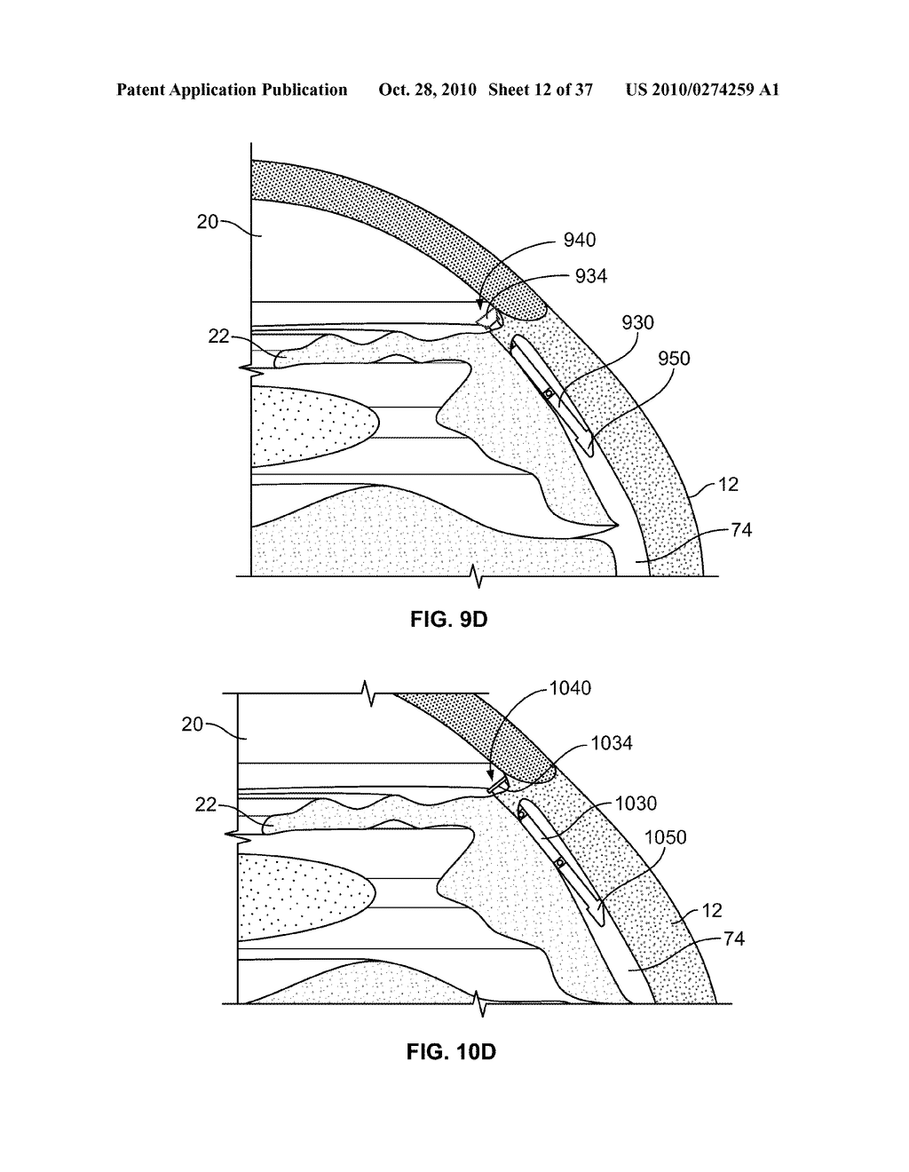FLUID DRAINAGE DEVICE, DELIVERY DEVICE, AND ASSOCIATED METHODS OF USE AND MANUFACTURE - diagram, schematic, and image 13