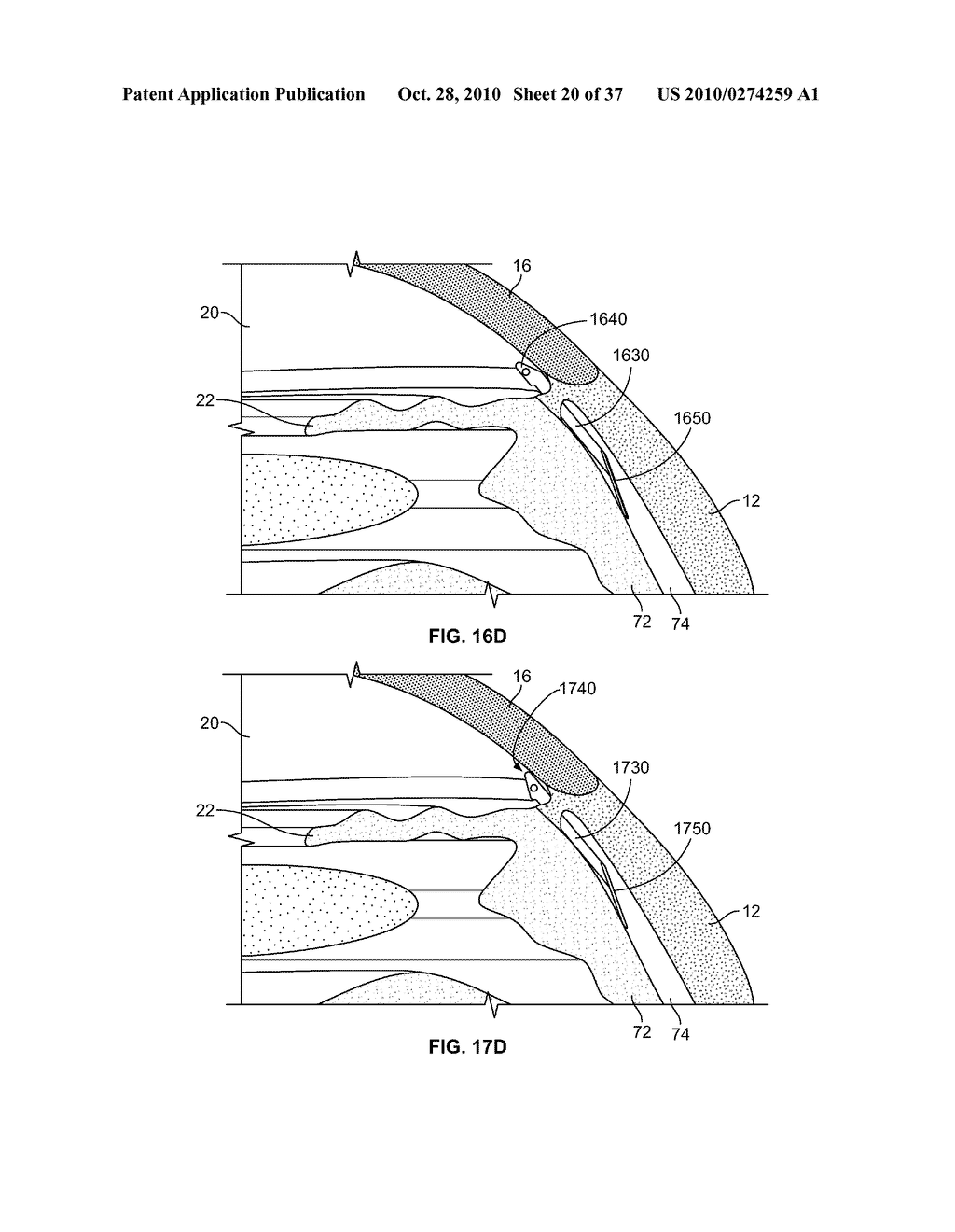 FLUID DRAINAGE DEVICE, DELIVERY DEVICE, AND ASSOCIATED METHODS OF USE AND MANUFACTURE - diagram, schematic, and image 21