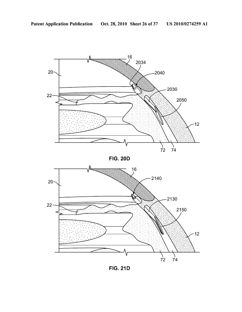 FLUID DRAINAGE DEVICE, DELIVERY DEVICE, AND ASSOCIATED METHODS OF USE AND MANUFACTURE - diagram, schematic, and image 27