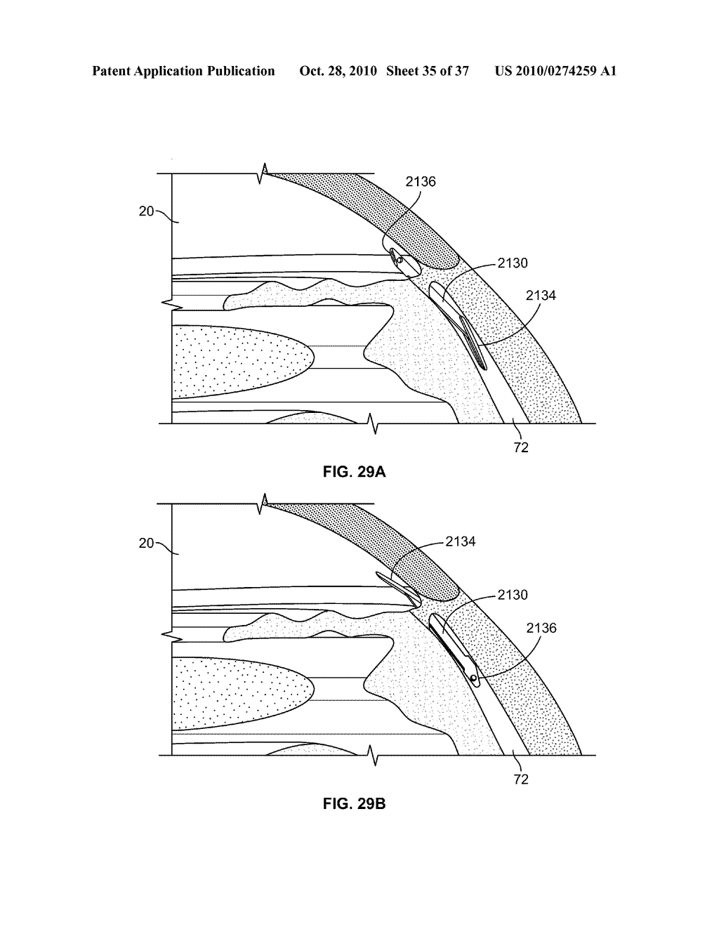 FLUID DRAINAGE DEVICE, DELIVERY DEVICE, AND ASSOCIATED METHODS OF USE AND MANUFACTURE - diagram, schematic, and image 36
