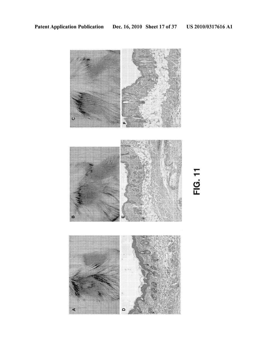 ALKYLATED SEMI-SYNTHETIC GLYCOSAMINOGLYCAN ETHERS, AND METHODS OF MAKING AND USING THEREOF - diagram, schematic, and image 18