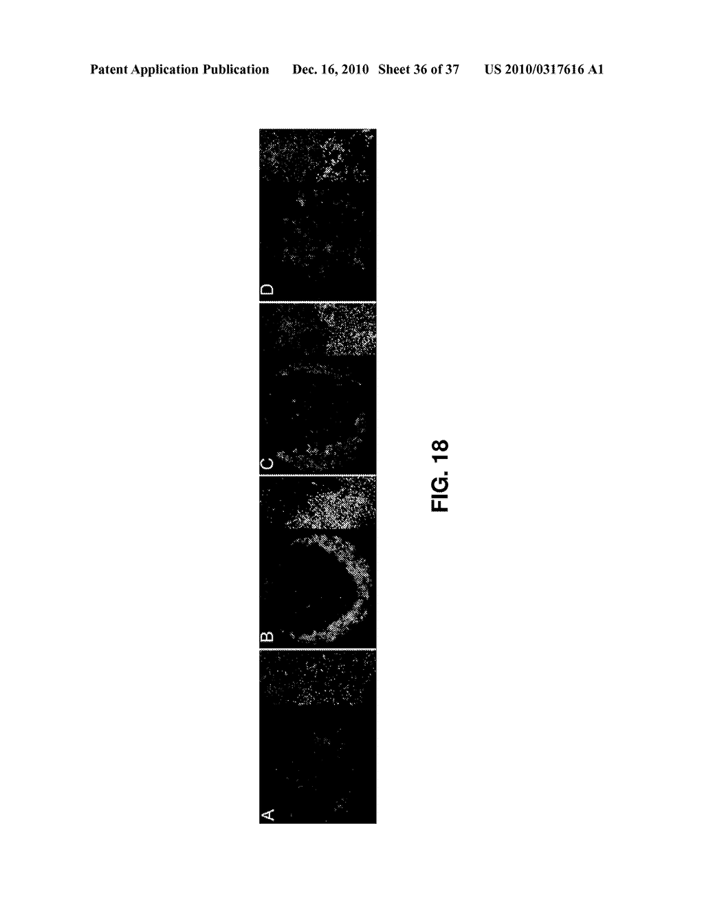 ALKYLATED SEMI-SYNTHETIC GLYCOSAMINOGLYCAN ETHERS, AND METHODS OF MAKING AND USING THEREOF - diagram, schematic, and image 37