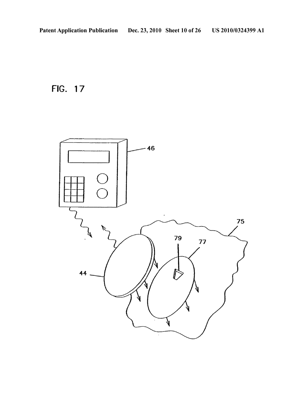 ANALYTE MONITORING DEVICE AND METHODS OF USE - diagram, schematic, and image 11