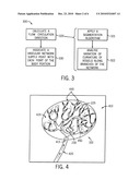 SYSTEM AND METHOD TO PROCESS AN ACQUIRED IMAGE OF A SUBJECT ANATOMY TO DIFFERENTIATE A PORTION OF SUBJECT ANATOMY TO PROTECT RELATIVE TO A PORTION TO RECEIVE TREATMENT diagram and image