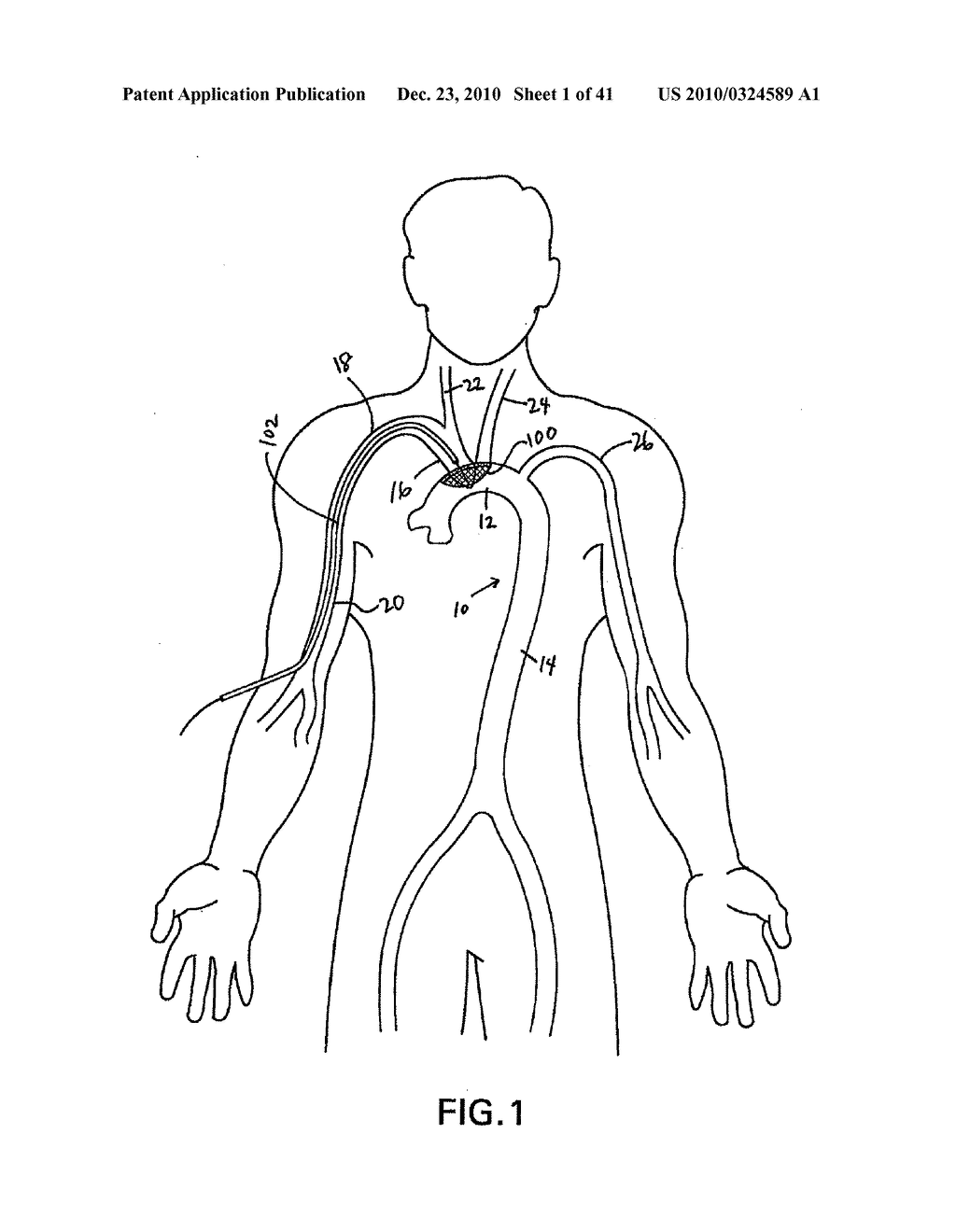 EMBOLIC DEFLECTION DEVICE - diagram, schematic, and image 02