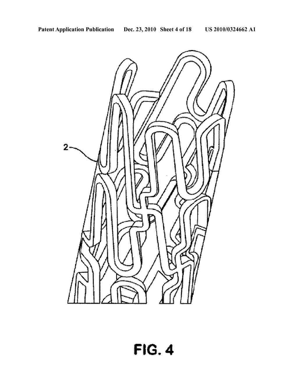 STENT HAVING HELICAL ELEMENTS - diagram, schematic, and image 05