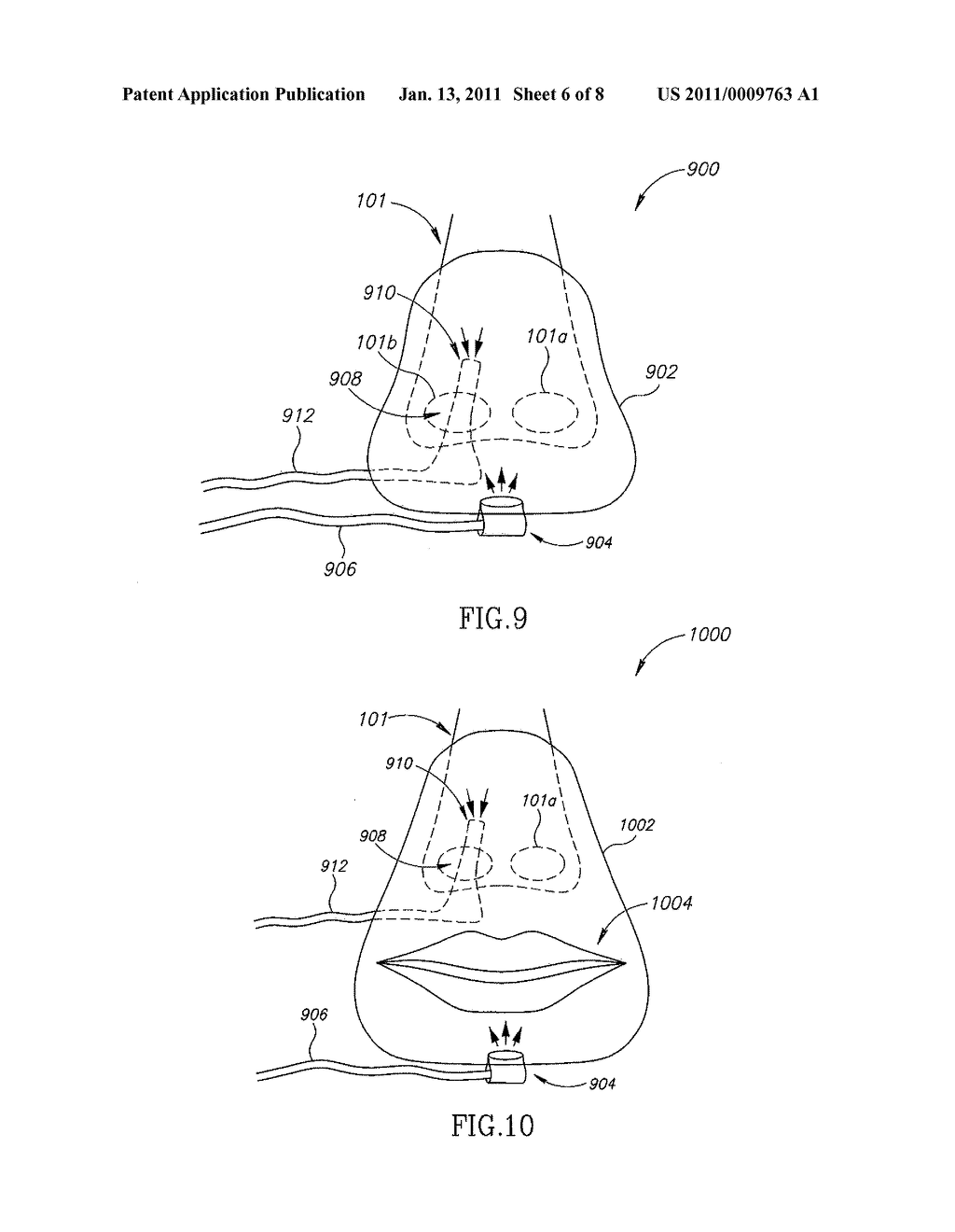 EXHALED BREATH SAMPLING WITH DELIVERY OF GAS - diagram, schematic, and image 07