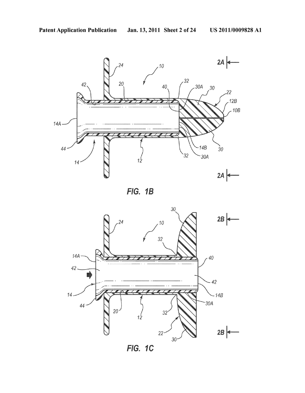 EXTENSIBLE INTERNAL BOLSTER FOR A MEDICAL DEVICE - diagram, schematic, and image 03