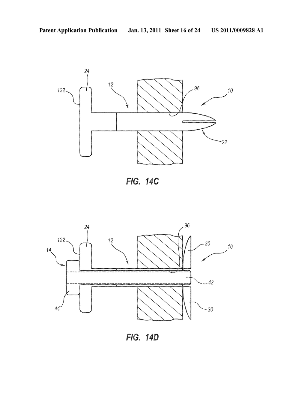 EXTENSIBLE INTERNAL BOLSTER FOR A MEDICAL DEVICE - diagram, schematic, and image 17