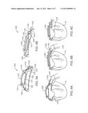 LEFT ATRIAL APPENDAGE DEVICES AND METHODS diagram and image