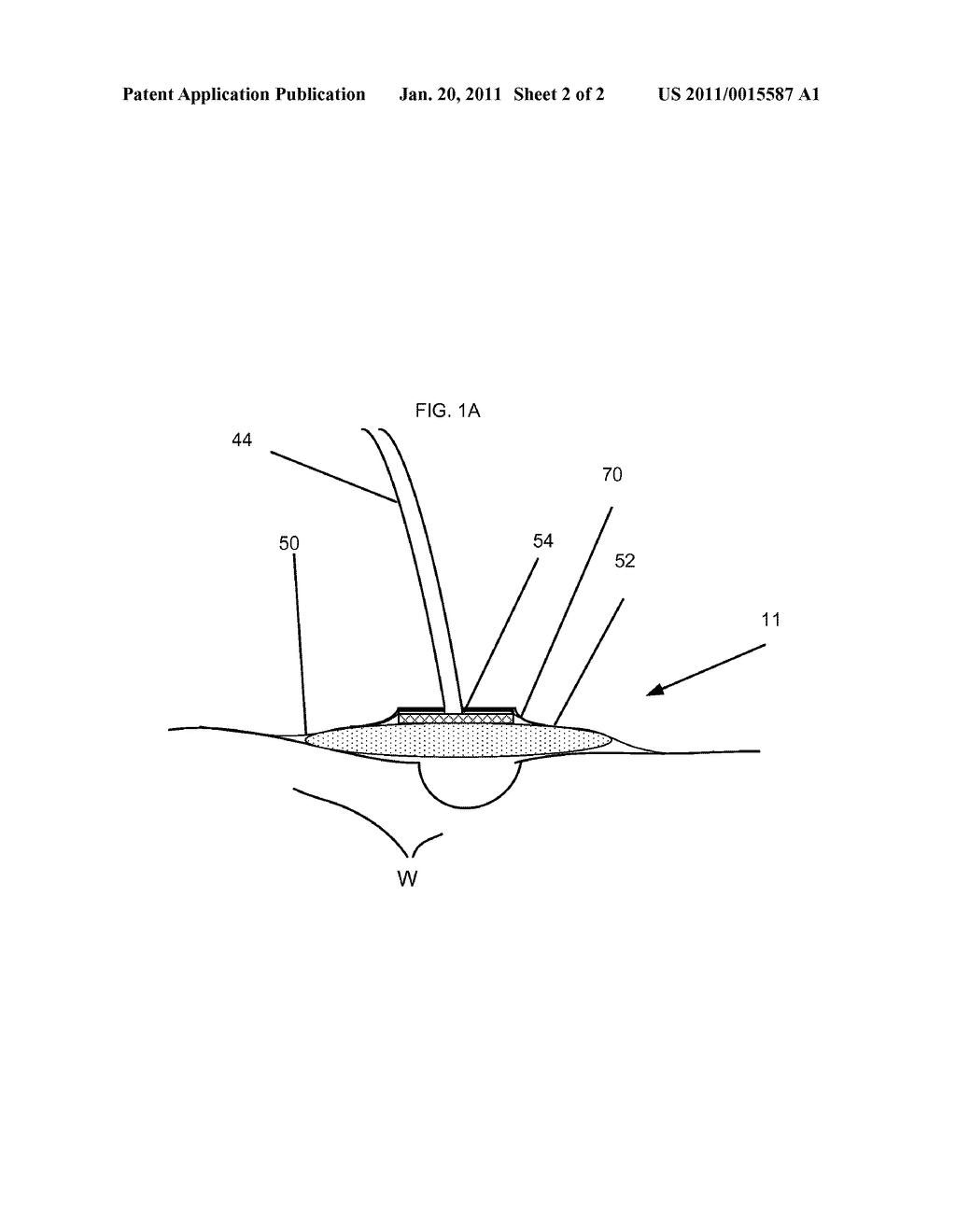 Irrigation Device and Method Using Same - diagram, schematic, and image 03