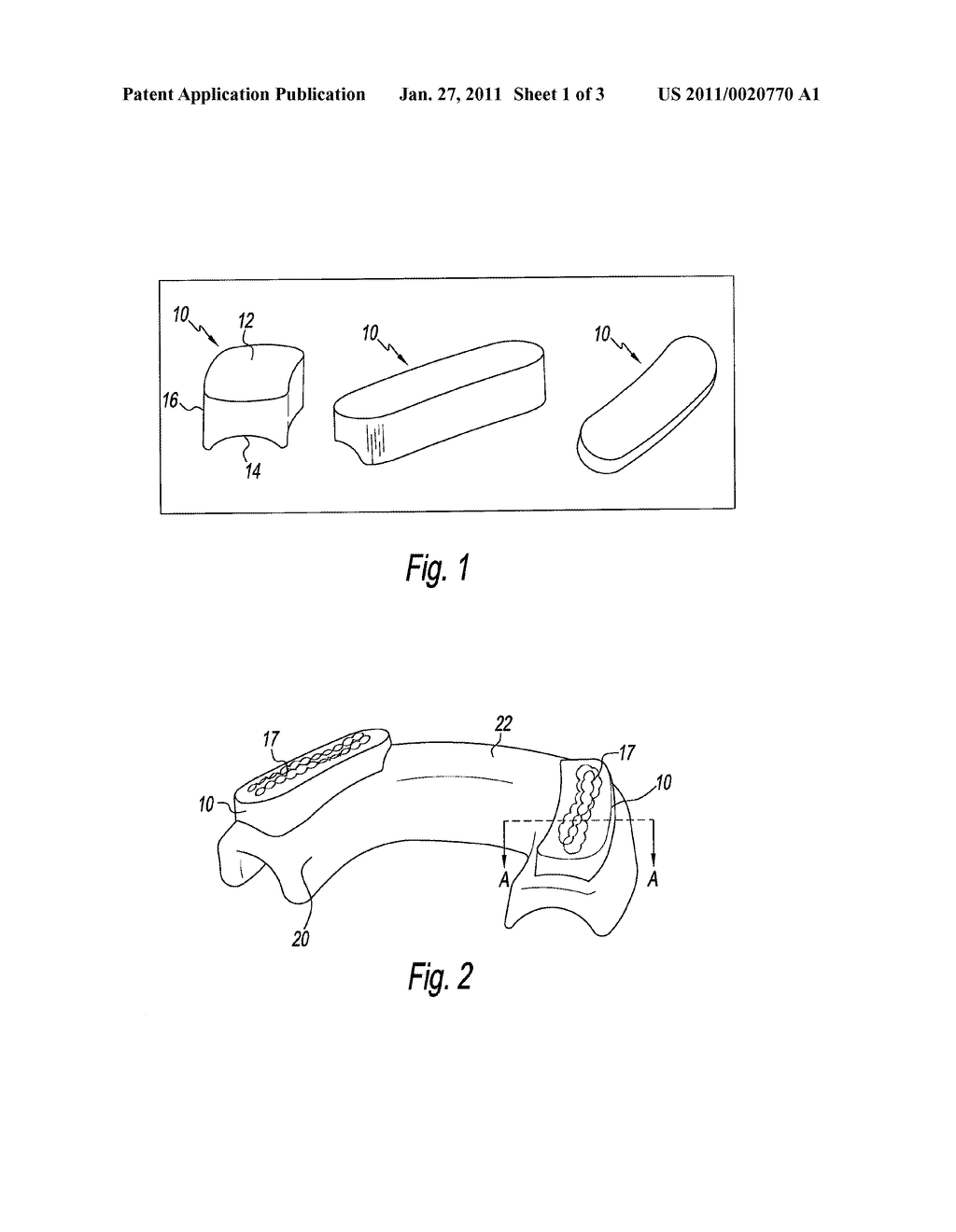 DENTAL SPLINTS AND METHOD FOR USING THE SAME - diagram, schematic, and image 02