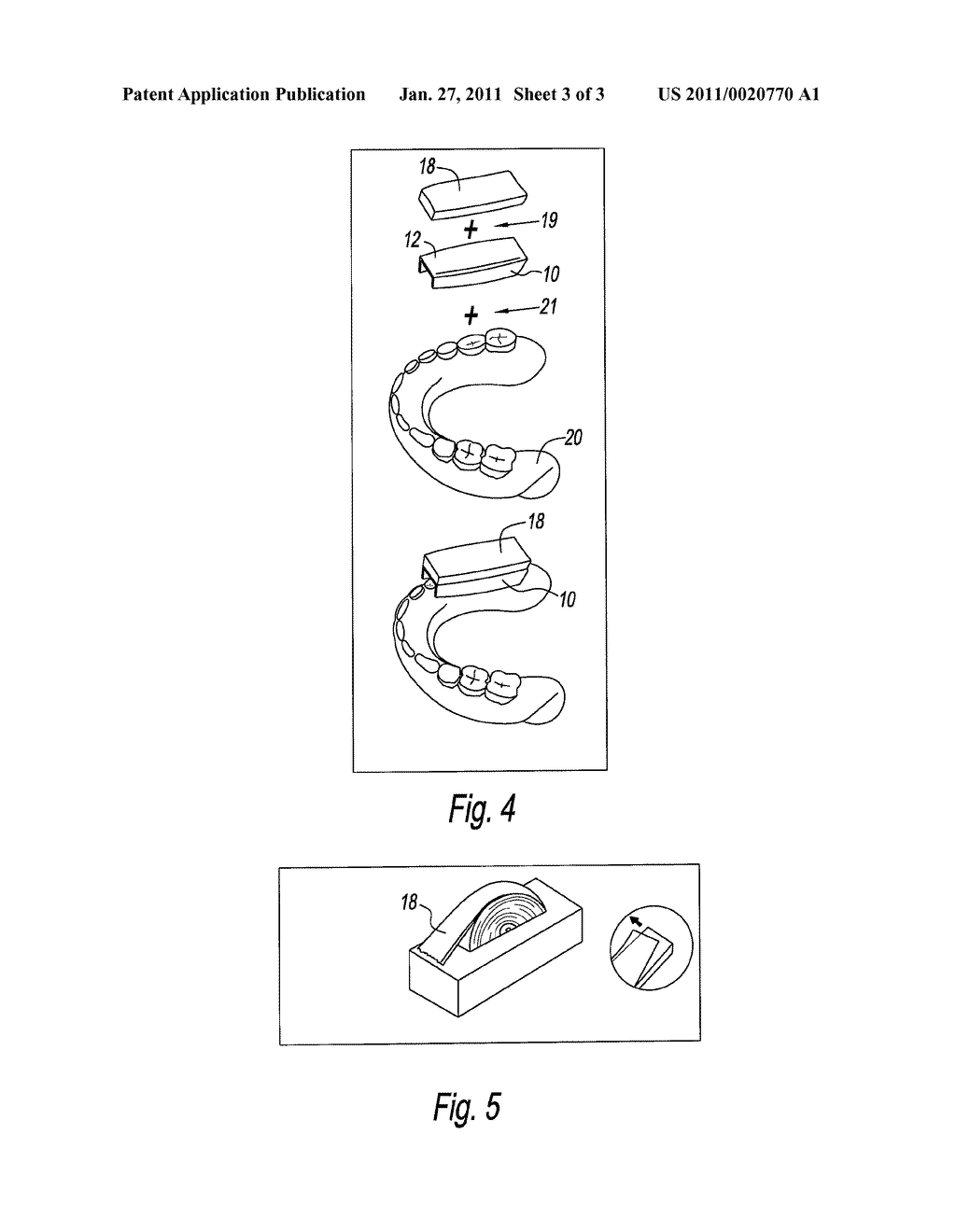 DENTAL SPLINTS AND METHOD FOR USING THE SAME - diagram, schematic, and image 04