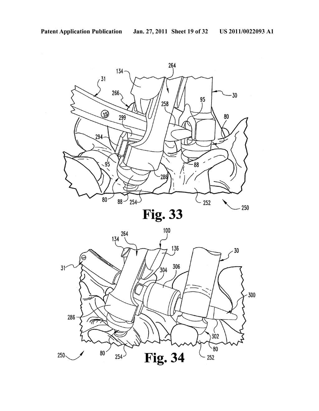 SYSTEMS AND METHODS FOR SPINAL STABILIZATION WITH FLEXIBLE ELEMENTS - diagram, schematic, and image 20