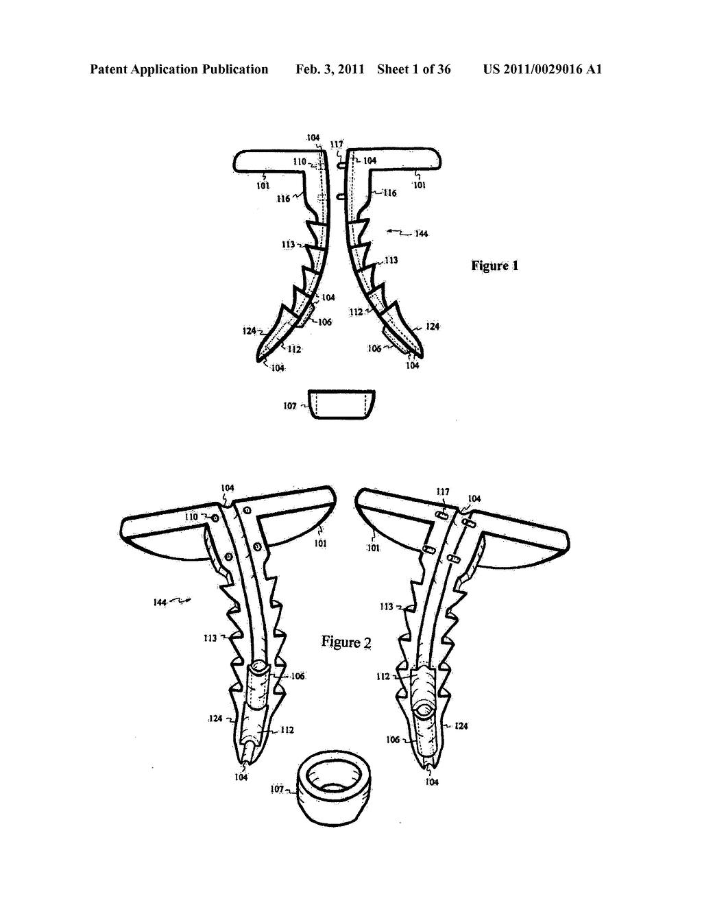 elastic tissue closure with elastic staple - diagram, schematic, and image  02