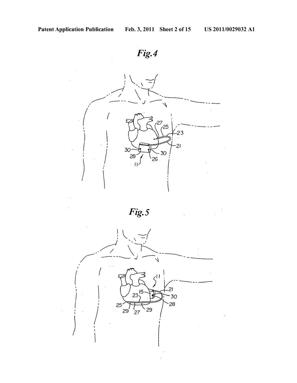 Cardioverter-Defibrillator Having a Focused Shocking Area and Orientation Thereof - diagram, schematic, and image 03