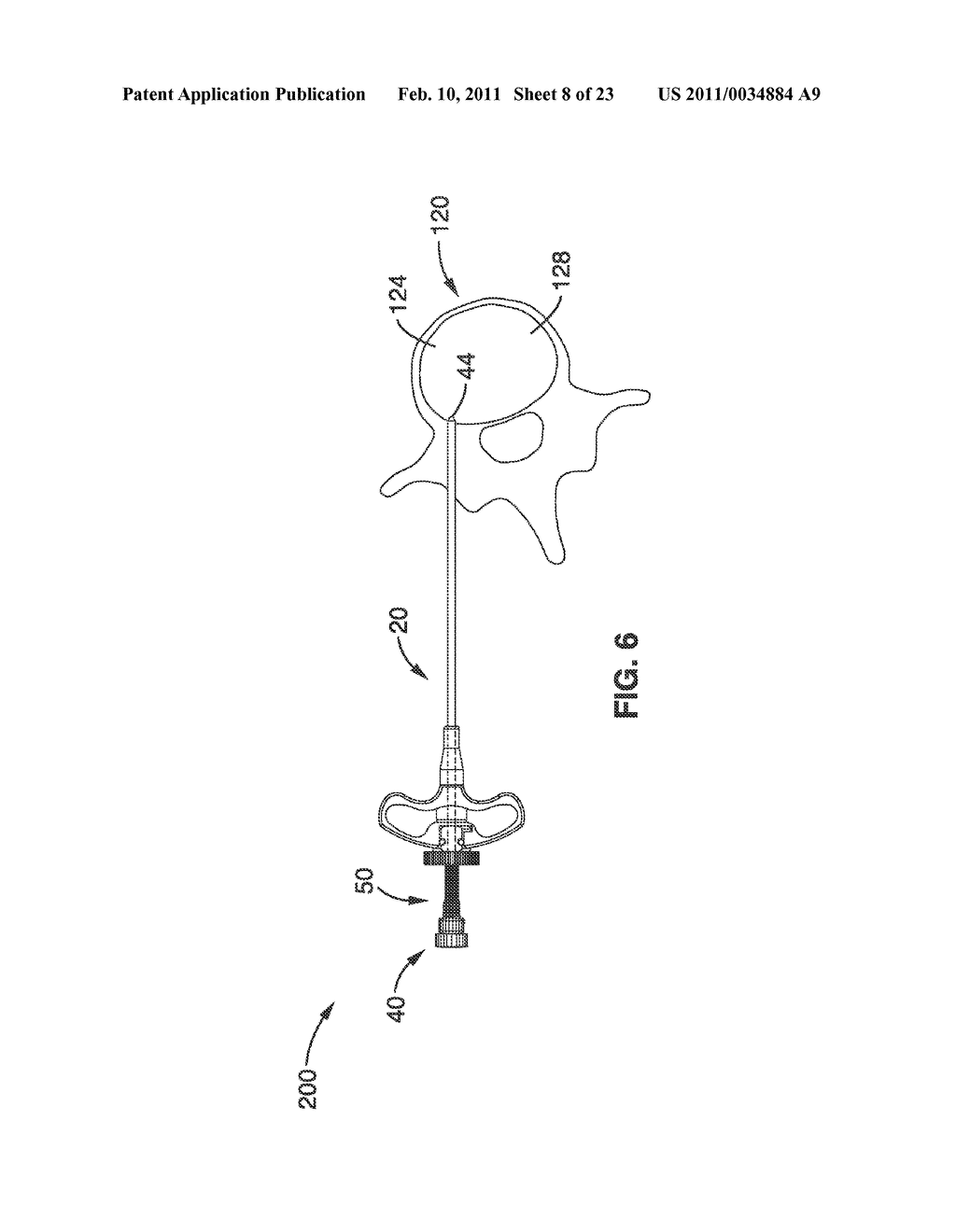 SYSTEMS AND METHODS FOR NAVIGATING AN INSTRUMENT THROUGH BONE - diagram, schematic, and image 09