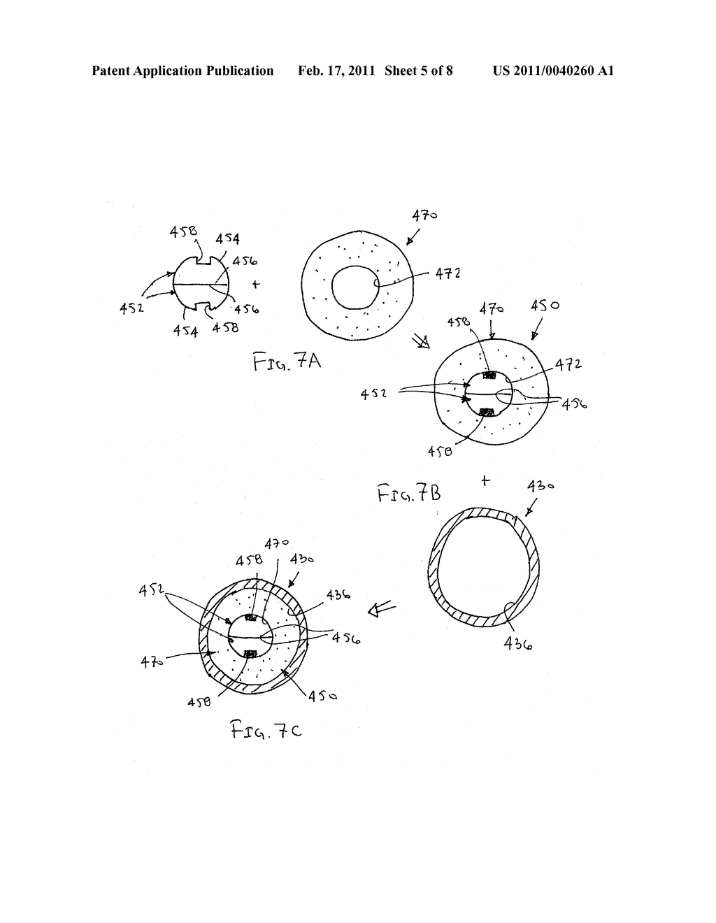VALVES AND HUBS FOR TUBULAR MEDICAL DEVICES AND METHODS FOR MAKING AND USING THEM - diagram, schematic, and image 06