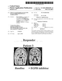 Molecular determinants of EGFR kinase inhibitor response in glioblastoma diagram and image