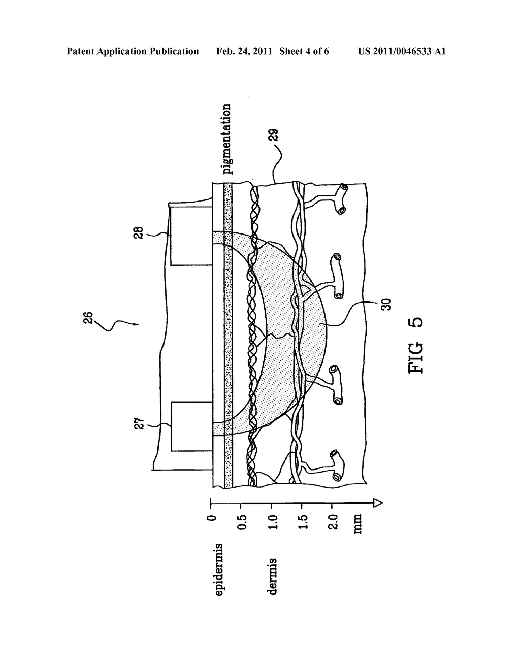 APPARATUS AND A METHOD FOR MONITORING A VASCULAR ACCESS - diagram, schematic, and image 05