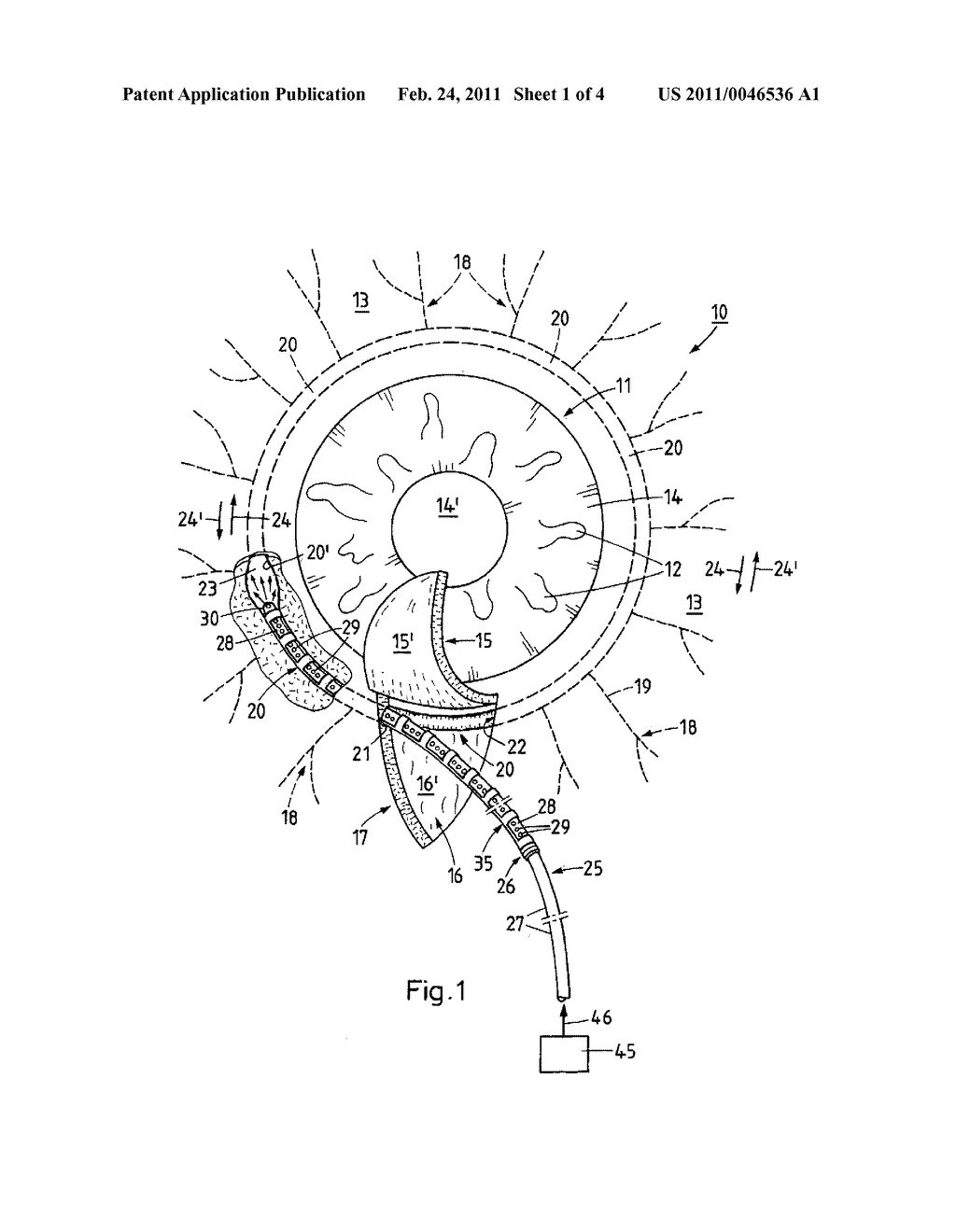 METHOD AND DEVICE FOR THE TREATMENT OF GLAUCOMA - diagram, schematic, and image 02