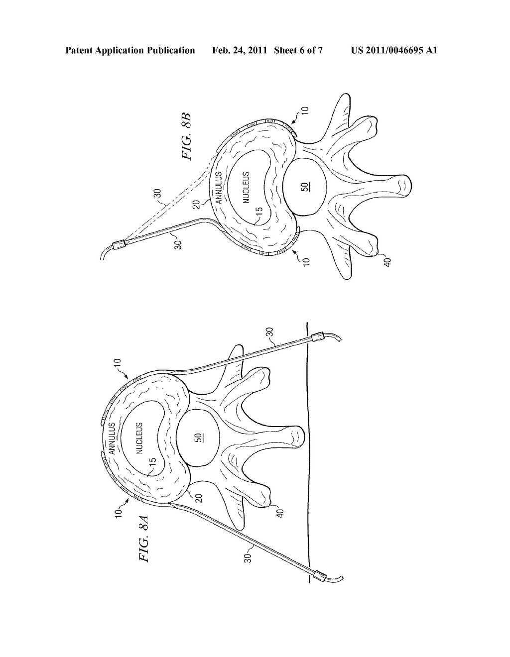 SYSTEM AND METHOD FOR ELECTRICAL STIMULATION OF THE INTERVERTEBRAL DISC - diagram, schematic, and image 07