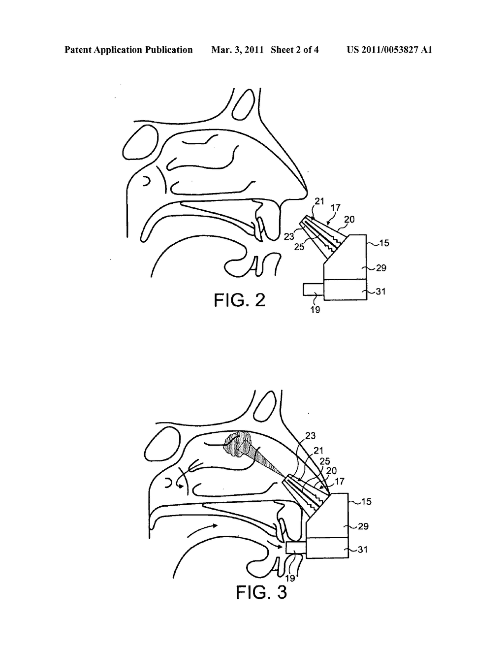 INTRANASAL ADMINISTRATION - diagram, schematic, and image 03