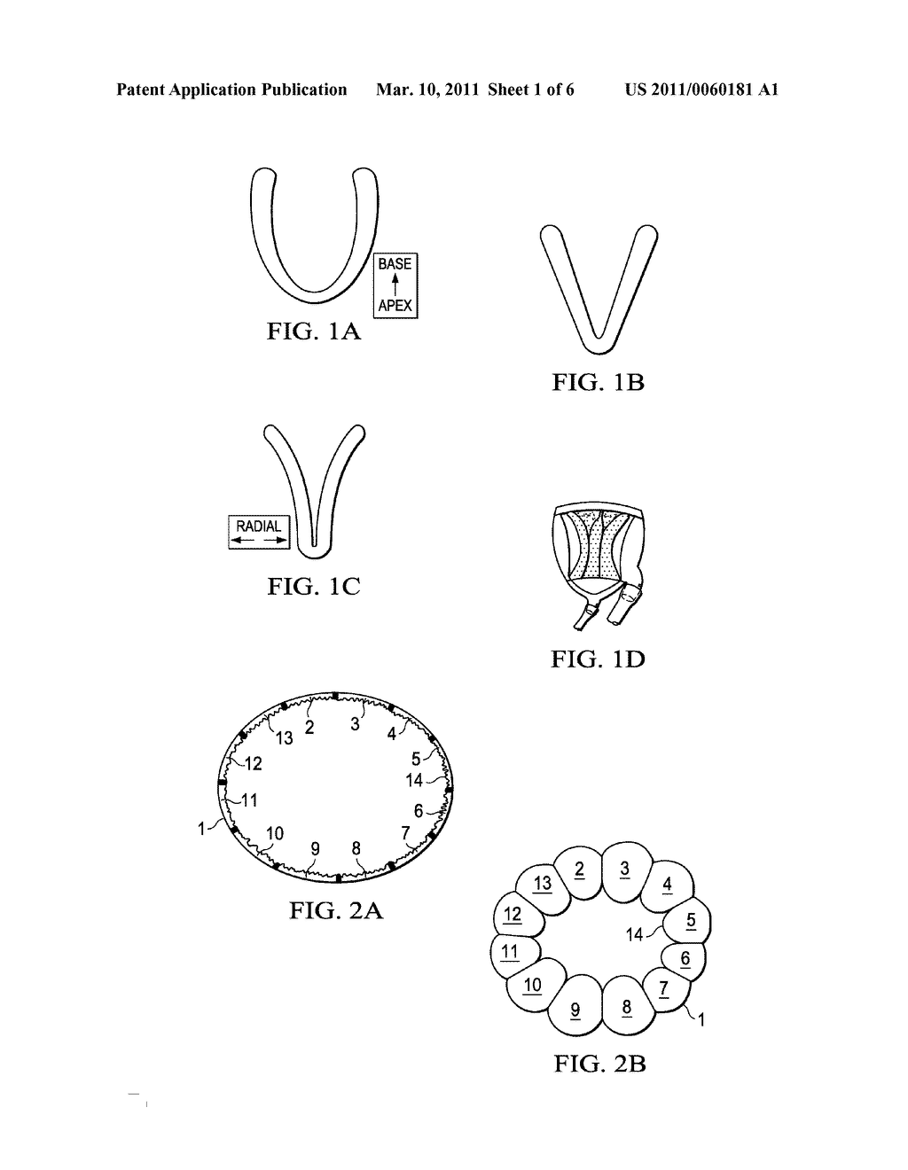 Biphasic and Dynamic Adjustable Support Devices and Methods with Assist and Recoil Capabilities for Treatment of Cardiac Pathologies - diagram, schematic, and image 02