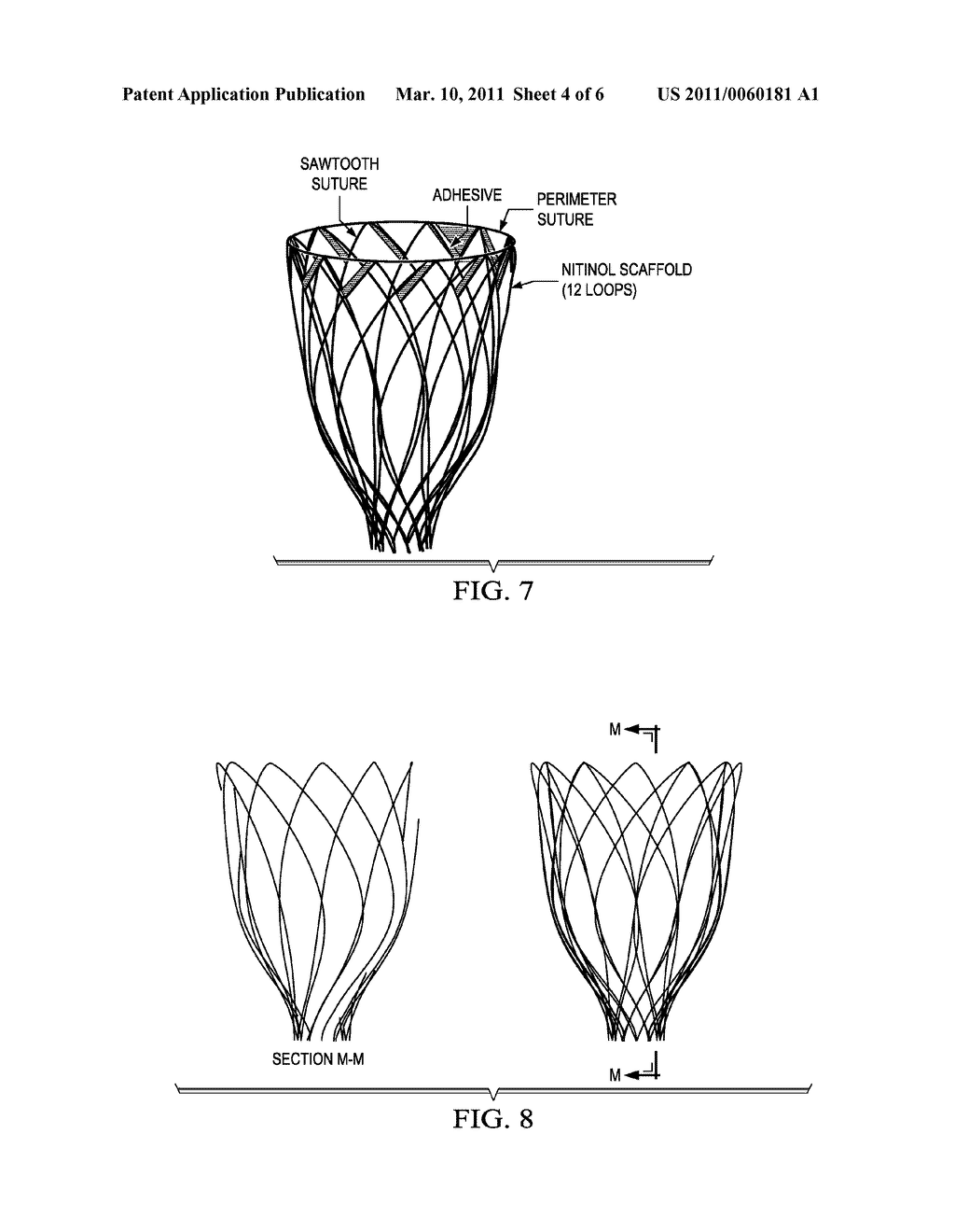 Biphasic and Dynamic Adjustable Support Devices and Methods with Assist and Recoil Capabilities for Treatment of Cardiac Pathologies - diagram, schematic, and image 05
