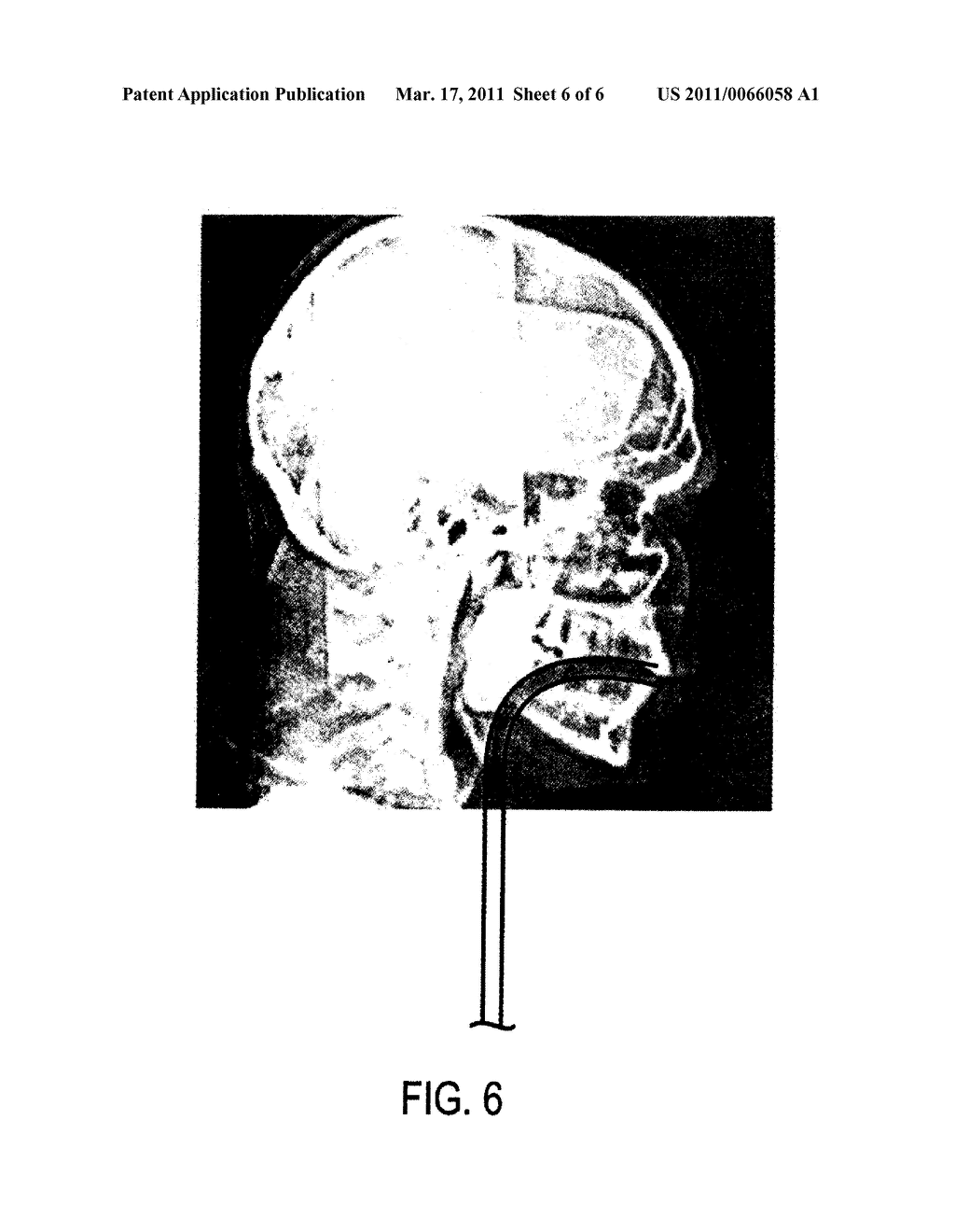 System and Method for Three-Dimensional Airway Reconstruction, Assessment and Analysis - diagram, schematic, and image 07