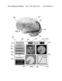 METHOD AND SYSTEM FOR QUANTITATIVE ASSESSMENT OF VISUAL FORM DISCRIMINATION diagram and image