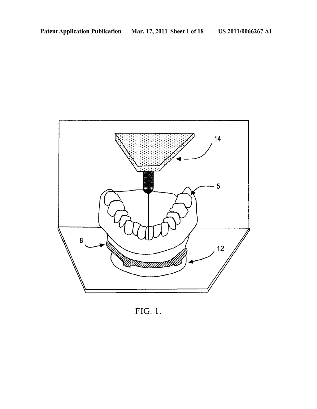 SURGICAL GUIDES AND METHODS FOR POSITIONING ARTIFICIAL TEETH AND DENTAL IMPLANTS - diagram, schematic, and image 02